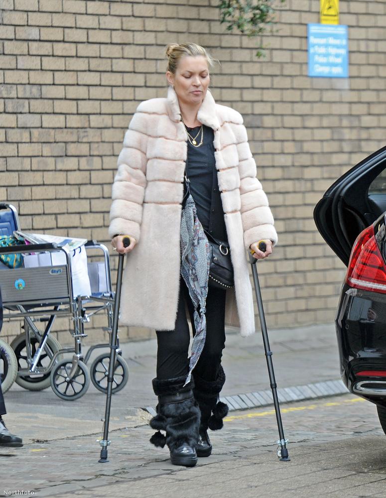 Kate Moss is úgy mutatkozott, ahogy nem nagyon szokott: mankóval bicegve.