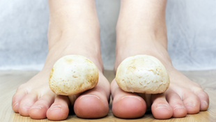 6 módszer, amivel gyógyszerek nélkül végezheti ki a körömgombát