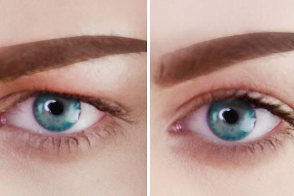 Bajt jelez a lógó szemhéj - A szemhéj megereszkedése, hogyan befolyásolja a látást