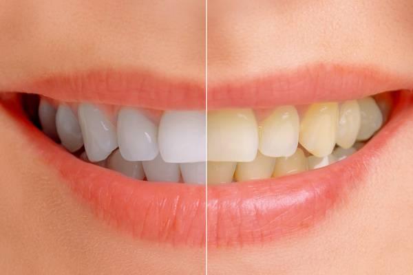 ha leszokik a dohányzásról a sárga fogak eltűnnek