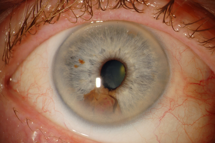 a látás jó, de a szemek fájnak