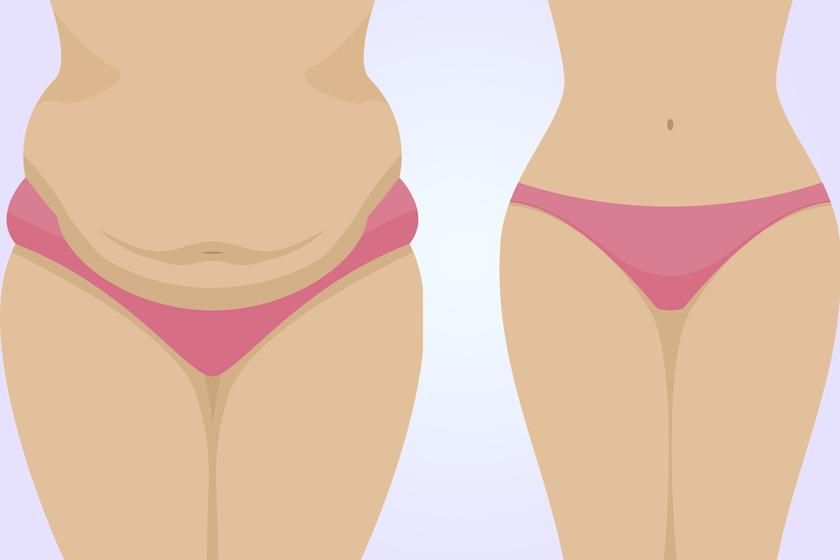 Hogyan lehet eltávolítani a hasi zsírt, A legjobb idő a fogyás időszakában