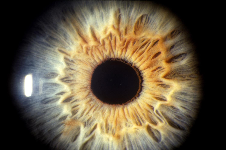 vakfolt szem