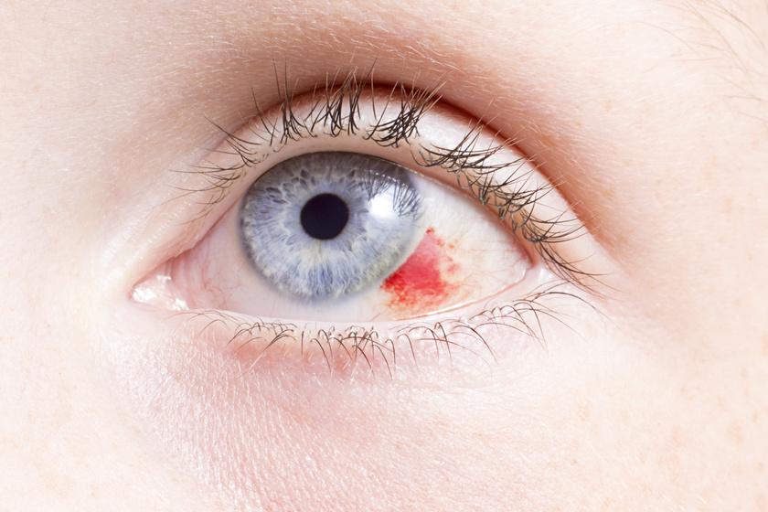 Mit jelezhet a bevérzett szem? - Egészségtüköeletrevalogyerek.hu
