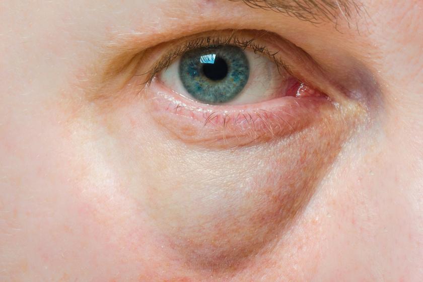 8 tünet, amely veseelégtelenségre utalhat