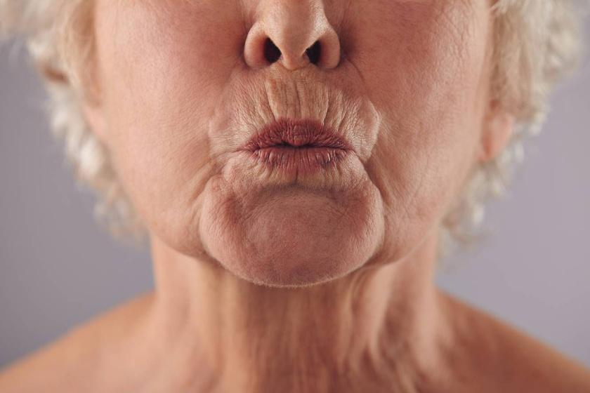 hogyan lehet eltávolítani a száj körüli zsírt 60 éves nő lefogy