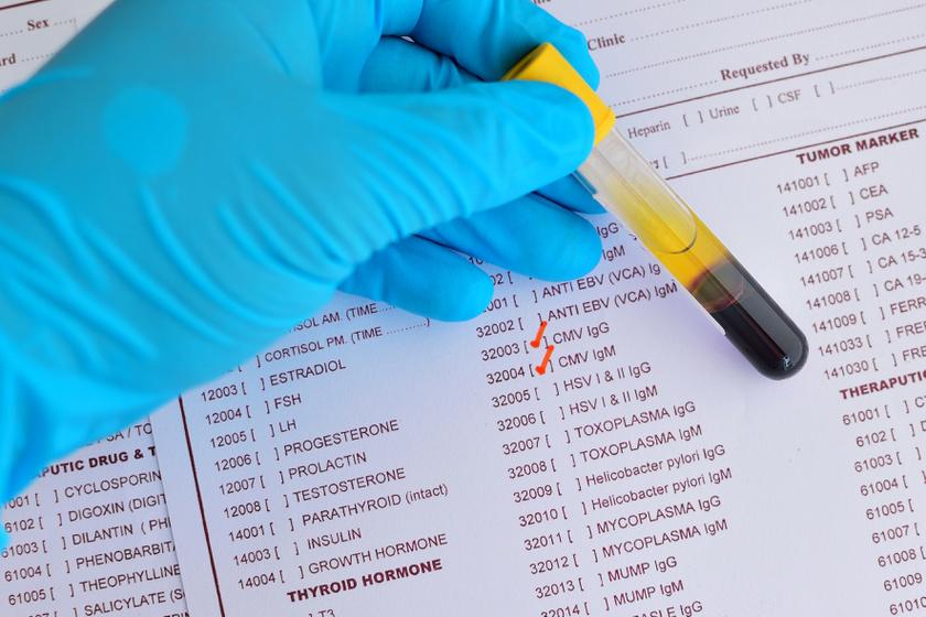 A HPV-fertőzés nem egyenlő a rákkal