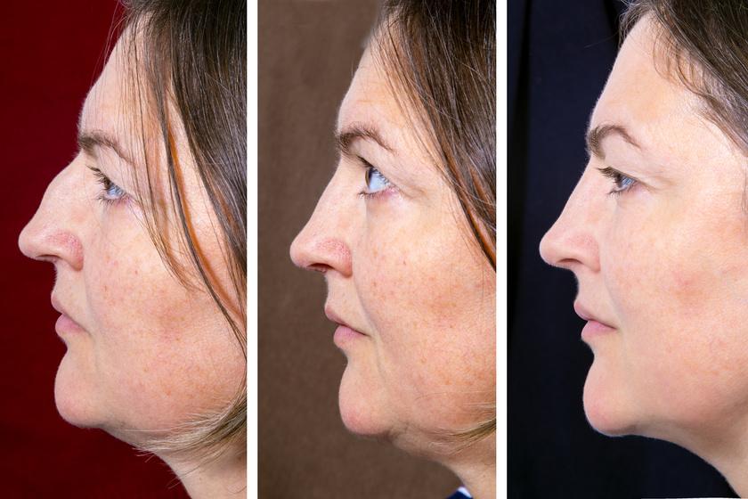 comb zsírvesztése előtte és utána