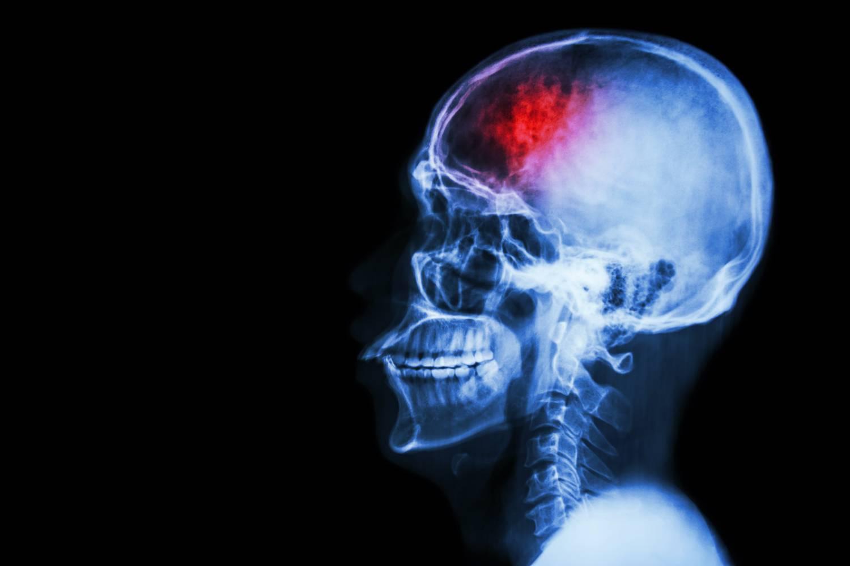 Halálos fertőzéseket is okozhat az agysérülések és a belek furcsa kapcsolata - Dívány
