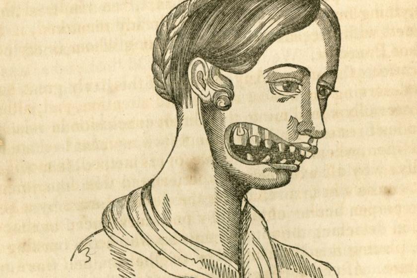 4 hetes fogyás előrehaladás a fogyás okoz-e sötét karikákat