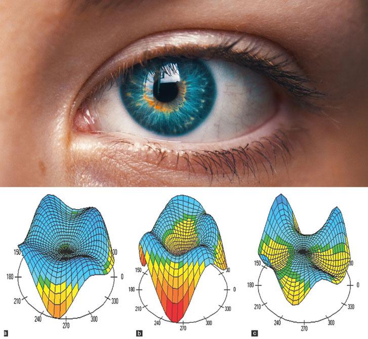 a szemek megbántják a jó látást méret teszt diagram