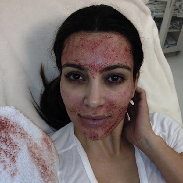 Kim Kardashian pikkelysömörös arcáról posztolt fotót | hu