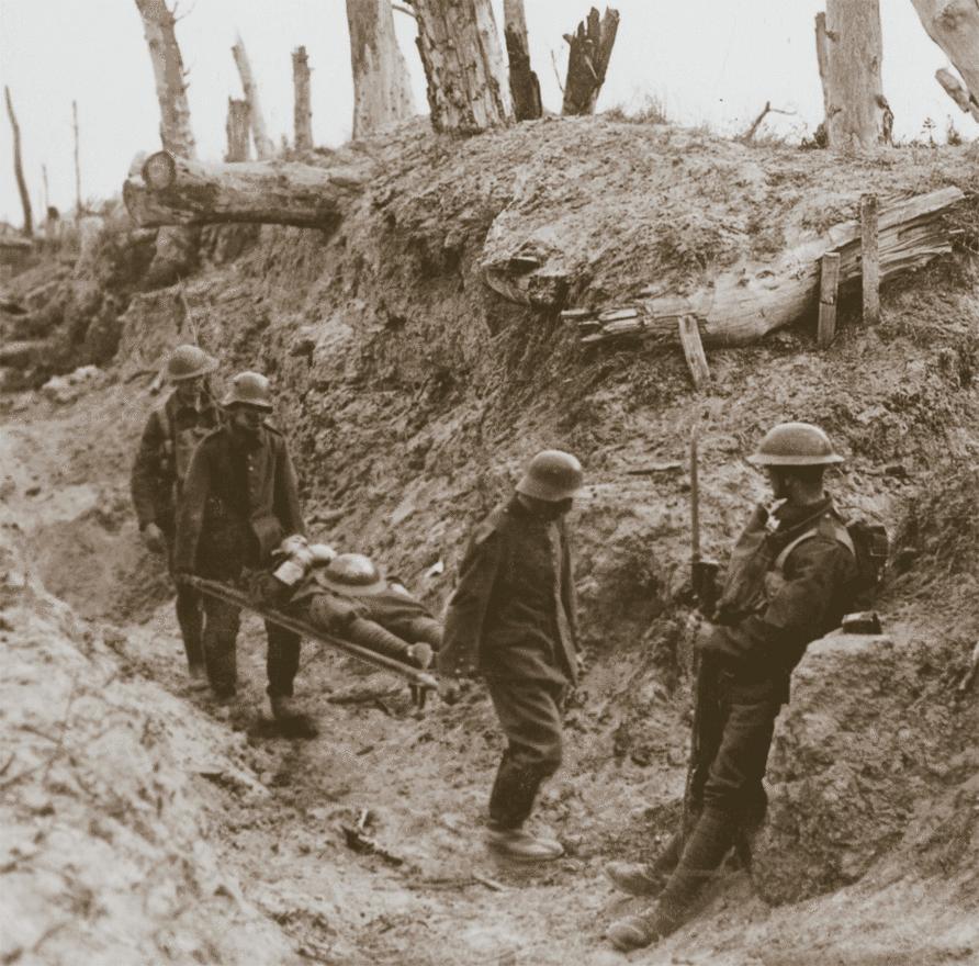 Német hadifoglyok szállítják az amerikai sérülteket. Az Amerikai Expedíciós Hadsereg főparancsnoka,  sokszor bírálta a franciák és a britek lövészárok-háborúját, és azon a véleményen volt, hogy a kiváló céllövő amerikai katonák komoly sikereket érnek majd el, és nyílt csatákban győzik le a német erőket. Az első bevetésre végül 1918 őszéig kellett várni, és bár az amerikai csapatok nagyban hozzájárultak az antant hadi sikereihez, történészek szerint sokkal fontosabb faktor volt a velük szemben harcoló egységek fáradtsága, alacsony morálja, és a hátországokban ekkor már erősödő háborúellenes mozgalmak hatása is.