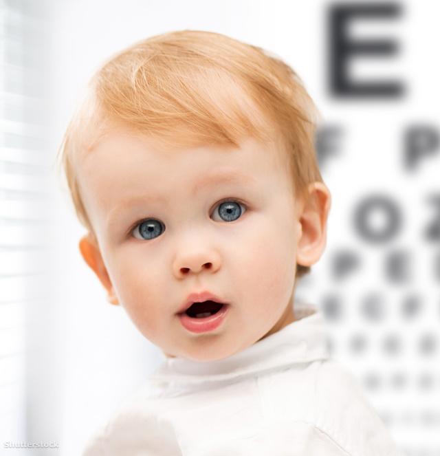 Gyermekszemek – ahogy az orvos látja