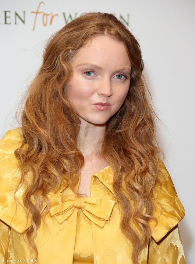 Az 1988-as születésű modell feltűnő baba arcára, hosszú vörös hajára és óriási szemeire 14 éves korában figyelt fel Benjamin Hart a londoni Sohoban, aminek köszönhetően 16 évesen már a brit Vogue borítóján pózolt.