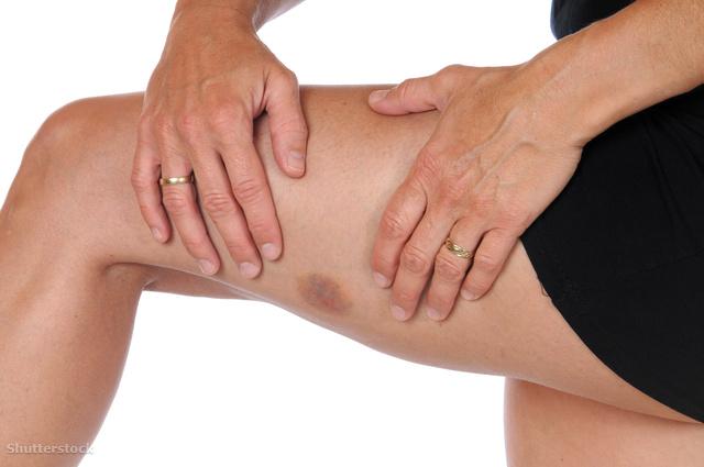 a lábán a vörös folt zúzódásként fáj)