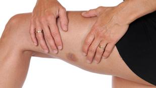 a lábán lévő zúzódás után vörös folt pikkelysömör gyorsan meggyógyultam