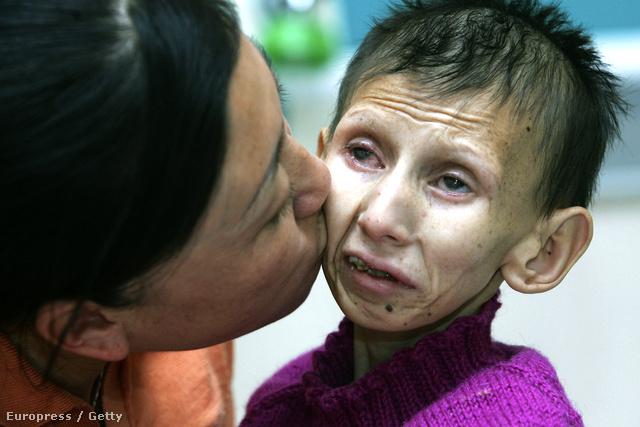 Cockayne szindrómás 12 éves kislány