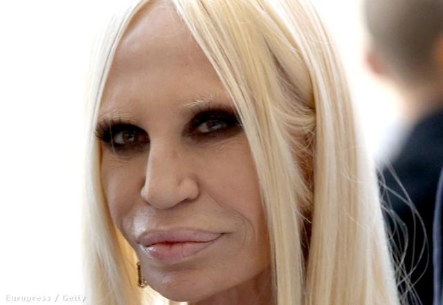 Donatella Versace nem ruháival, inkább arcával sokkol.