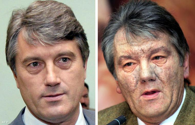 Viktor Juscsenko mérgezése előtt és után