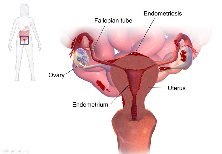 Blausen 0349 Endometriosis.png