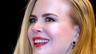 Nicole Kidman arca mintha viaszból lenne