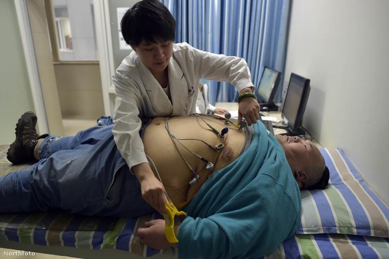 Liang Yong 88 kilót fogyott, miután megalázták és kiröhögték az utcán