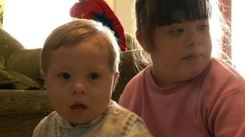 Minden harmadik Down-szindrómás gyermeket elhagynak