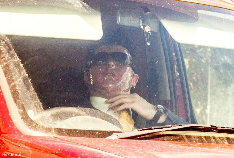 Az arcbőre olyan súlyosan megégett, hogy a tárgyalásra napszemüvegben és védőmaszkban érkezett