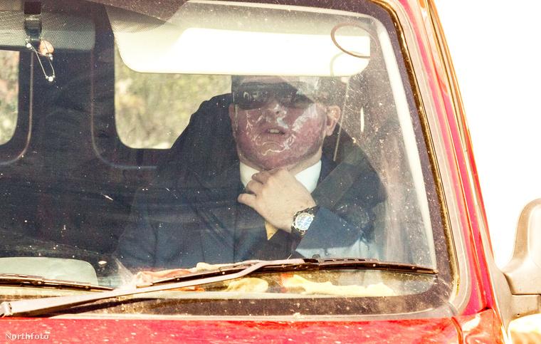 Pörgött  a héten egy nagyon szomorú történet is egy angol férfiról, akit bosszúból, ráadásul tévedésből öntöttek le savval
