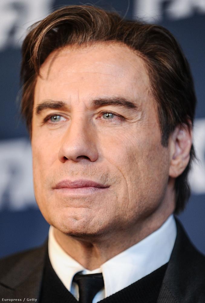 Travolta arcaváltozásai olyan régóta zajlanak a szemünk előtt, hogy talán már el is felejtettük, hogyan változtatták meg a természetes öregedési folyamatok, illetve a kisebb-nagyobb plasztikai beavatkozások.
