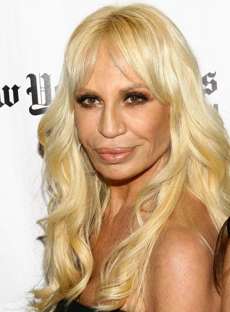 2008: a kiugrasztott arccsontok még ijesztőbbé teszik az arcát, amiben már semmi sem emlékeztet a korábbi állapotokra.