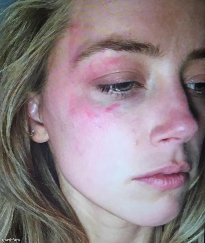 Körbejárták a világsajtót Amber Heard arcának zúzódásai, amiket elvileg akkor szerzett, mikor Depp egy borospoharat vágott hozzá