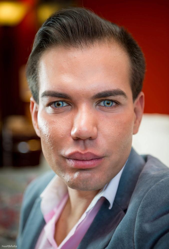 Rodrigo Alves igazi műtétfüggő