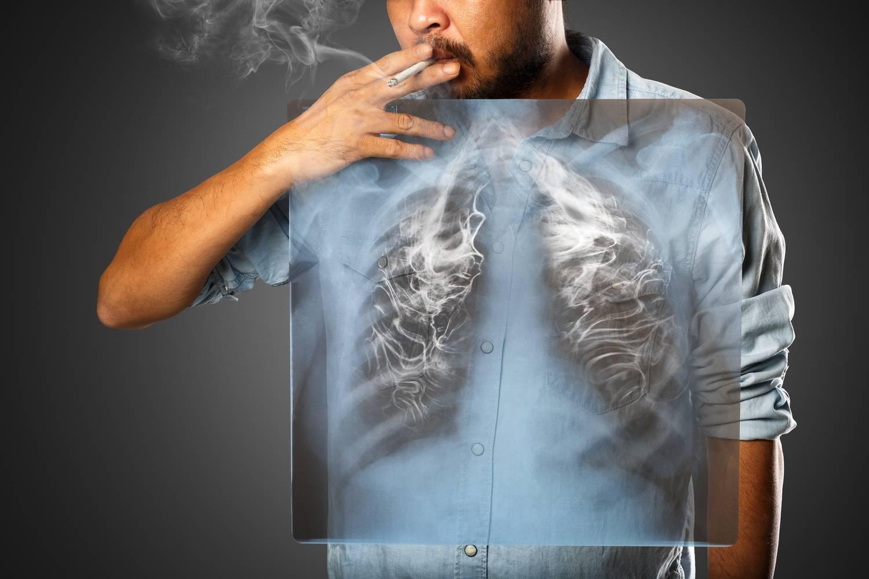 A tüdőrák 7 kevésbé ismert, szokatlan tünete - Dívány