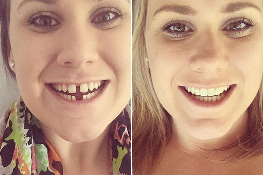 fogászati fogszabályozás fogyás előtt és után
