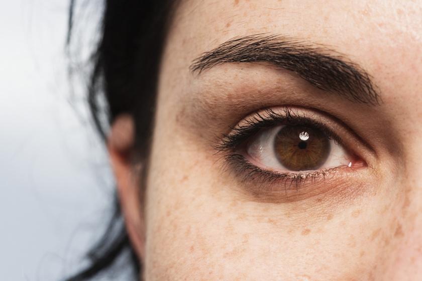 Látás fekete karikák a szemekben. Tévhitek a kezelésről