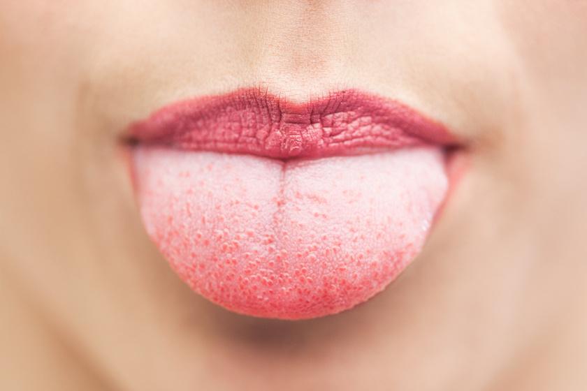 égő nyelv fogyás