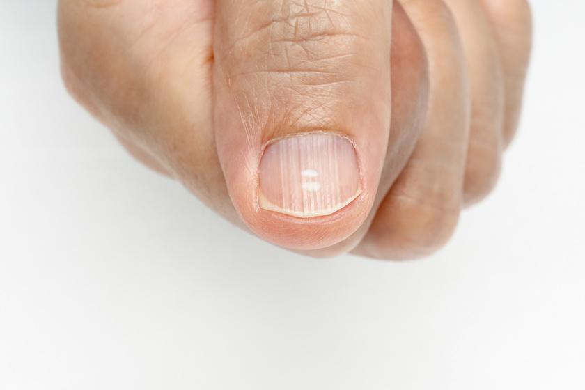 a körömízület betegségei eszköz térdízületek kezelésére