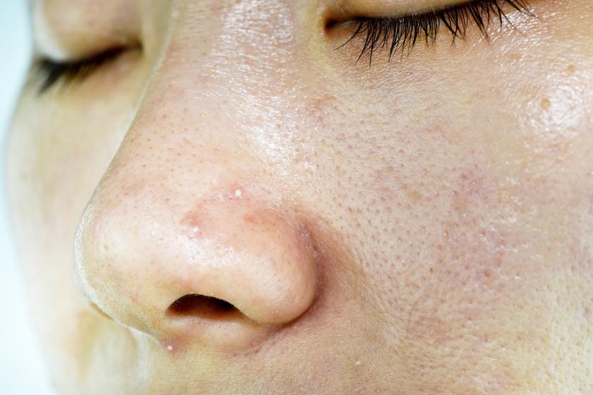 készítmények a test és a bőr tisztítására)