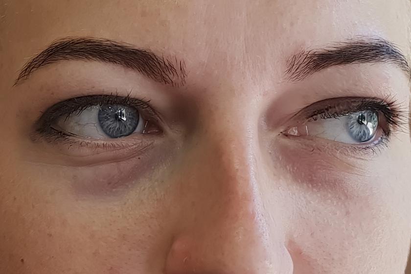 homályos látás és karikák a szem előtt