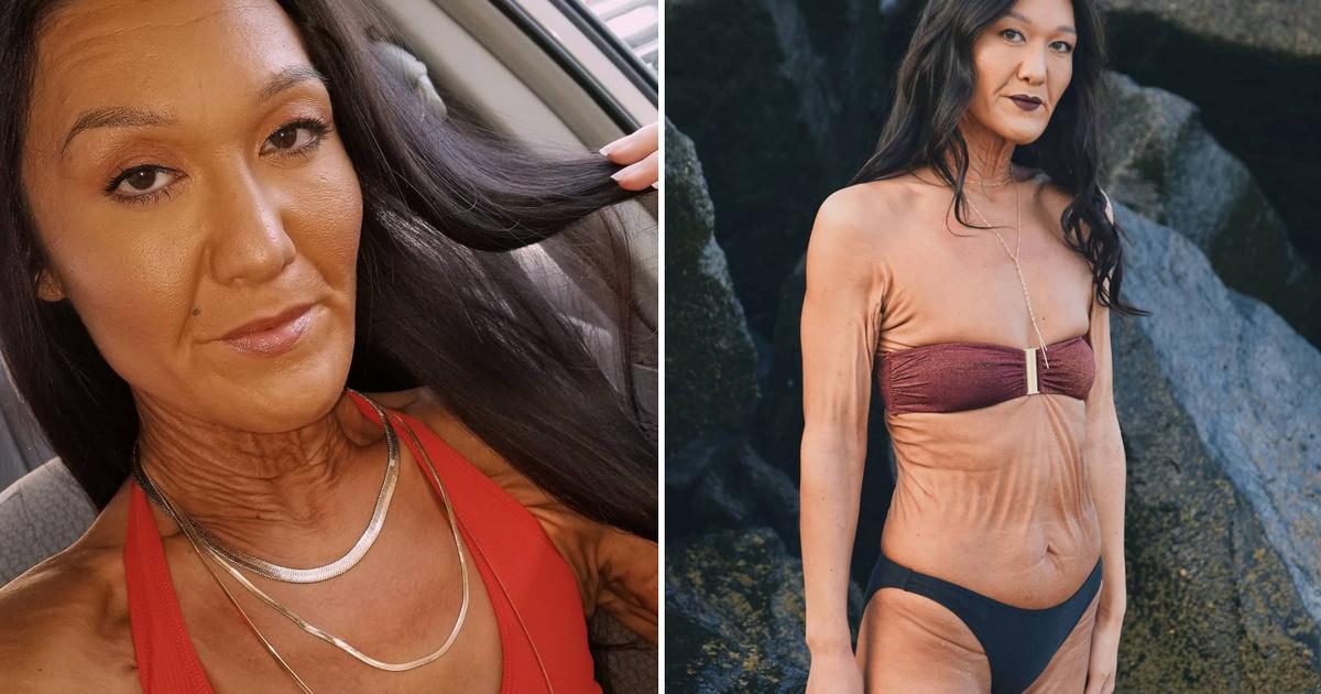 29 évesen egy idős nő testébe zárva él a modell: fotókon mutatjuk, hogyan ad erőt másoknak