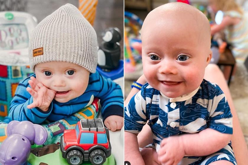 Cuki modell lett a Down-szindrómás babából: az Instagram új sztárja az egyéves Emmett