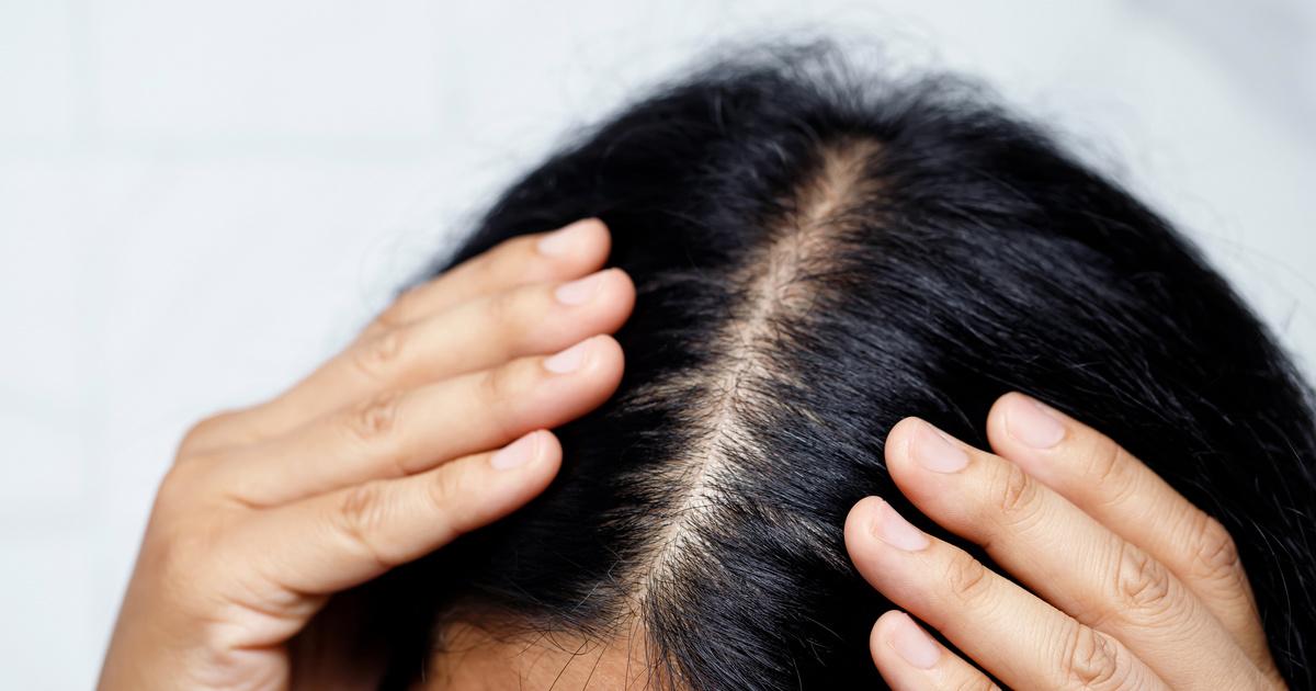 A prosztatitis miatt a hajhullás Erősítse a libidót a prosztatitisben