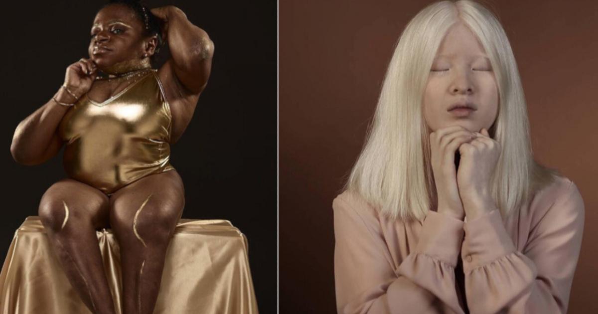 Sosem gondolták ezek a nők, hogy valaha ilyen sikeresek lesznek: a modellügynökség újradefiniálja a szépség fogalmát