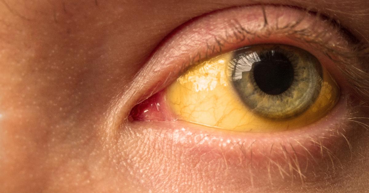 A máj súlyos problémájára utalhat a sárga szem: így jelzi a szervezet a bajt