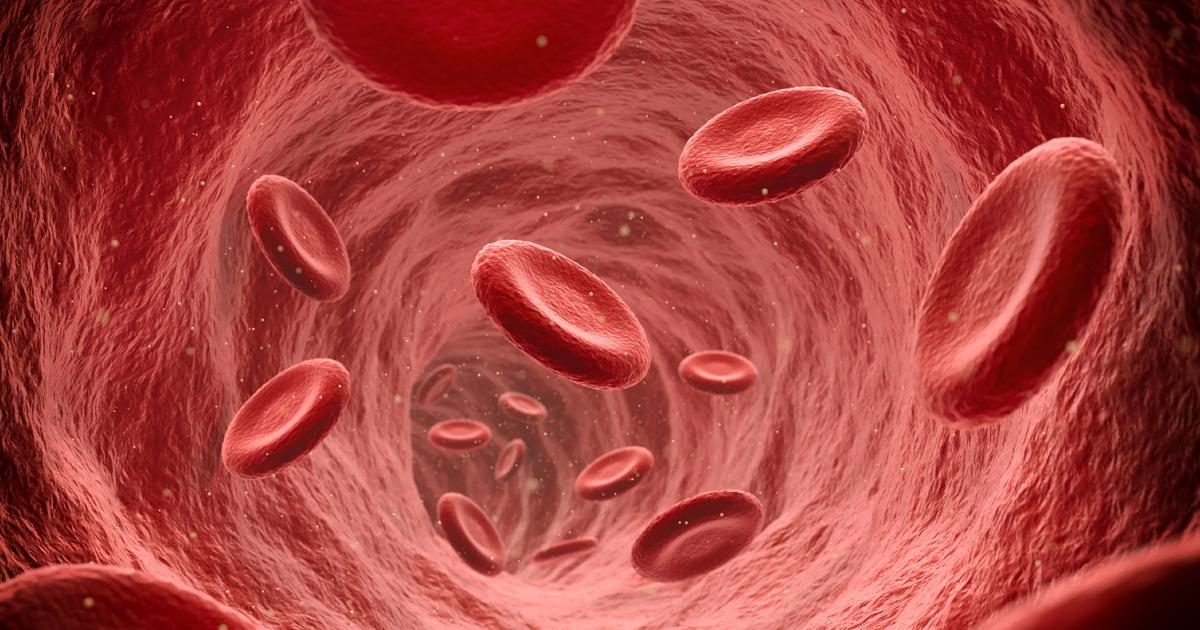 A Covid okoz gyakran trombózist, nem az oltás: a szakorvos szerint a véralvadási zavarral élőket megmentheti a vakcina