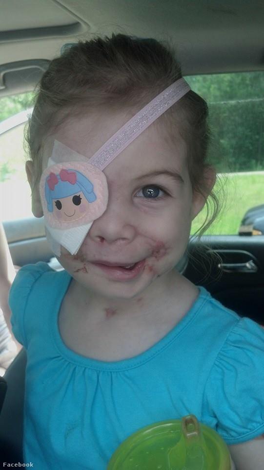 A sebhelyes arcú kislány felháborító története lehet az utóbbi évek egyik legnagyobb átverése