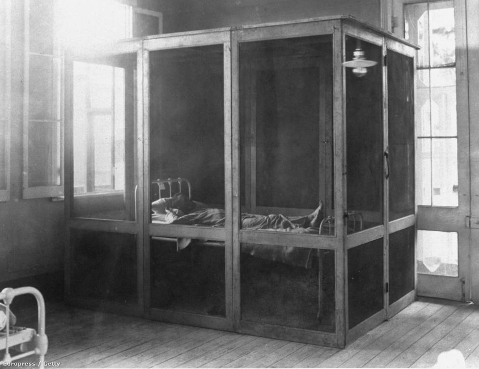 Sárgalázban szenvedő beteg az anconi kórházban. Az 1910-es képen látható kabin egy hordozható betegágy. Charles Dingler, a franciák első projektcégének munkavezetője egyszer azt találta mondani, hogy a sárgalázat csak a lusták kapják el. Egyes adatok szerint ötezer francia és 25 ezer más nemzetiségű munkás volt elég lusta 1881 és 1889 között ahhoz, hogy elkapja a maláriát vagy a sárgalázat.