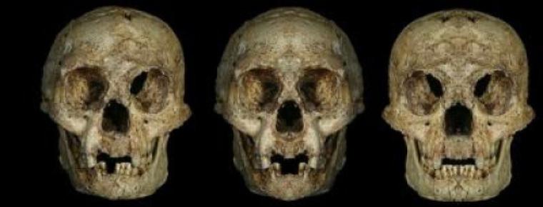 Balra az eredeti koponya, középen a jobb agyféltekéből tükrözött kép, jobbra pedig a bal agyféltekéből tükrözött.